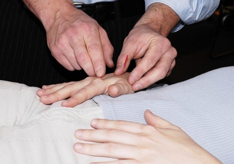 acupuncture intervention
